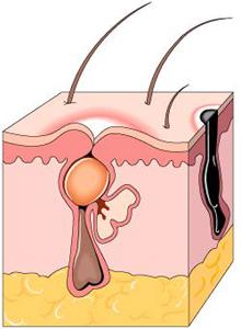 acne-dib.jpg