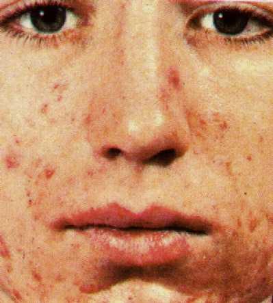 acne-juv.jpg