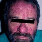 Cómo eliminar las cicatrices y marcas del acné: Tratamiento Peeling