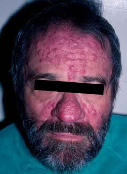 acne_rosacea.jpg