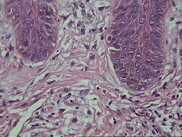 146-aspecto-en-alambra-del-colageno-dermico-cicatriz-acne-solucion.jpg