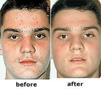 clearlight-fototerapia-tratamiento-acne-luz-azul-antes-despus-resultados.jpg