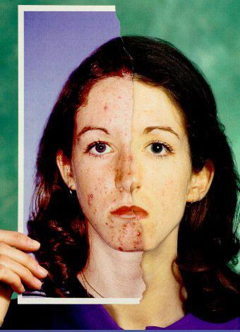 roaccutane-accutane-tratamiento-contra-el-acne-informacion-mujer.jpg