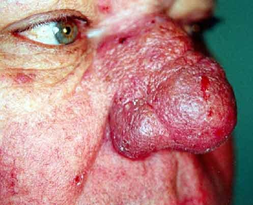 Remedio de enrojecimiento facial natural