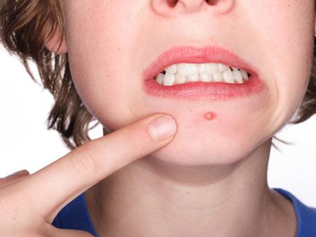 5 remedios para el acné