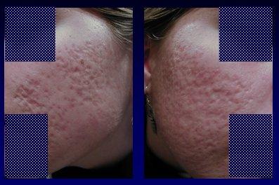 Técnicas y tratamientos para eliminar las cicatrices y marcas del
