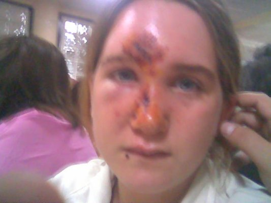 espinilla-nariz-acne-tratamiento-clinica-centro-estetica-cirugia.jpg