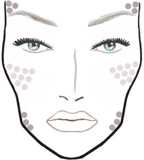 ridectomia-acne-secuelas-cicatrices-marcas-eliminar-tratamiento-tecnica-clinica-cirugia.jpg